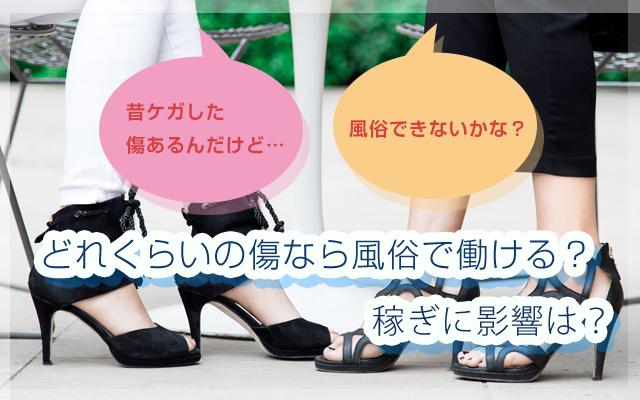 ksj_傷_top
